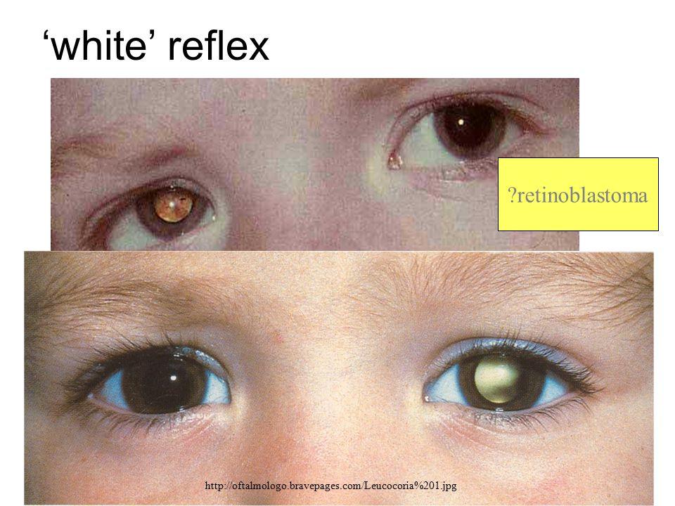 'white' reflex www.occhioallaretina.it/Immagini/leucocoria.JPG http://oftalmologo.bravepages.com/Leucocoria%201.jpg ?retinoblastoma