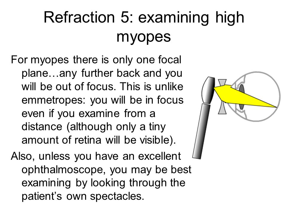 Refraction 5: examining high myopes For myopes there is only one focal plane…any further back and you will be out of focus. This is unlike emmetropes:
