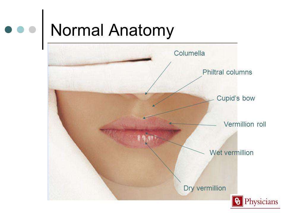 Normal Anatomy Columella Philtral columns Cupid's bow Vermillion roll Wet vermillion Dry vermillion