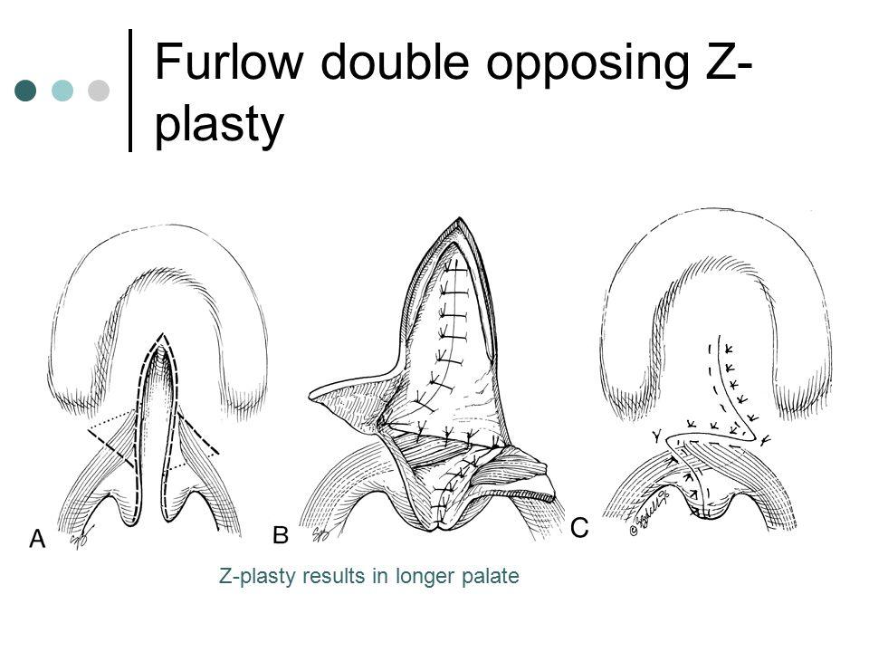 Furlow double opposing Z- plasty Z-plasty results in longer palate