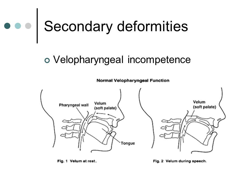 Secondary deformities Velopharyngeal incompetence