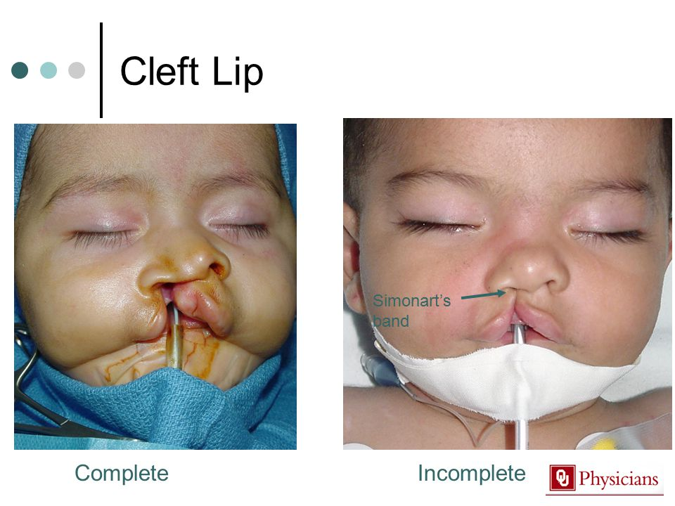 Cleft Lip CompleteIncomplete Simonart's band