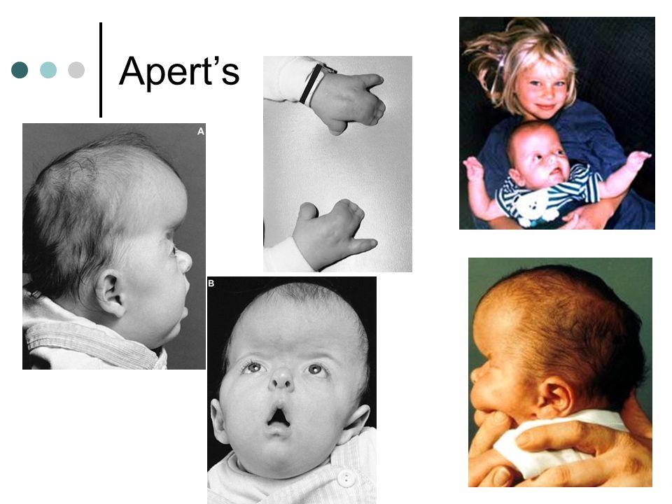Apert's