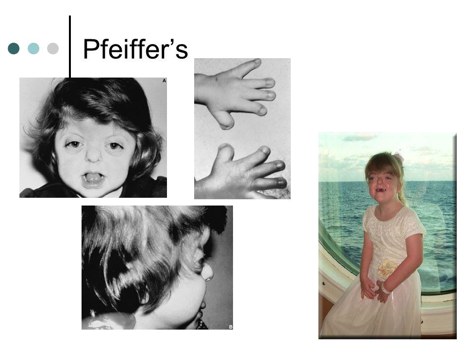 Pfeiffer's