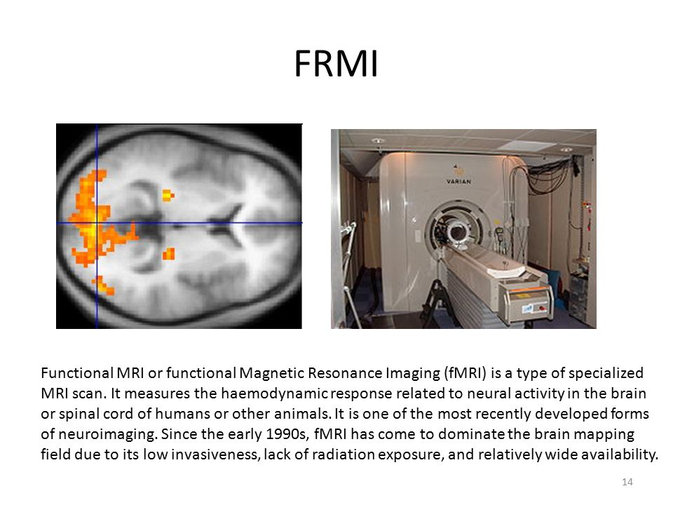 FRMI Functional MRI or functional Magnetic Resonance Imaging (fMRI) is a type of specialized MRI scan.