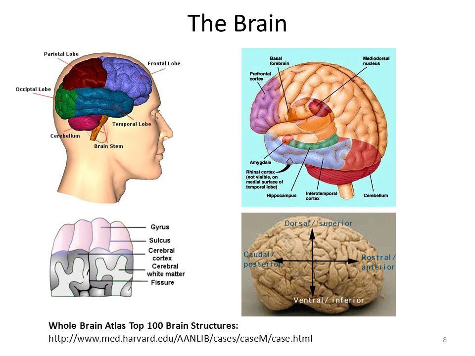 The Brain Whole Brain Atlas Top 100 Brain Structures: http://www.med.harvard.edu/AANLIB/cases/caseM/case.html 8