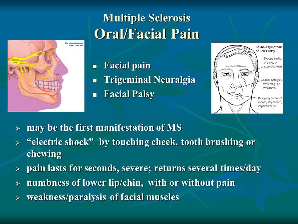 Multiple Sclerosis Oral/Facial Pain Facial pain Facial pain Trigeminal Neuralgia Trigeminal Neuralgia Facial Palsy Facial Palsy  may be the first man