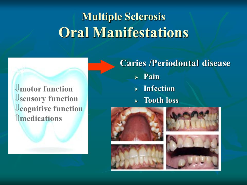 Caries /Periodontal disease Multiple Sclerosis Oral Manifestations  motor function  sensory function  cognitive function  medications  Pain  Infection  Tooth loss