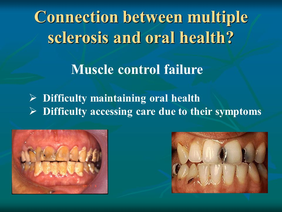 Connection between multiple sclerosis and oral health? Muscle control failure  Difficulty maintaining oral health  Difficulty accessing care due to