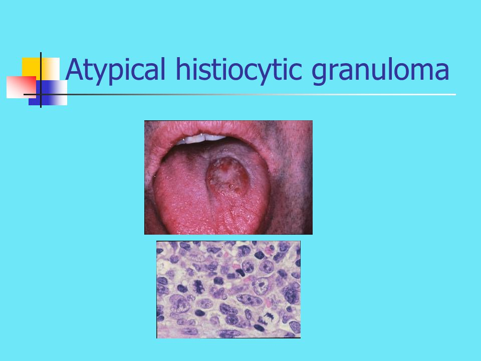 Atypical histiocytic granuloma
