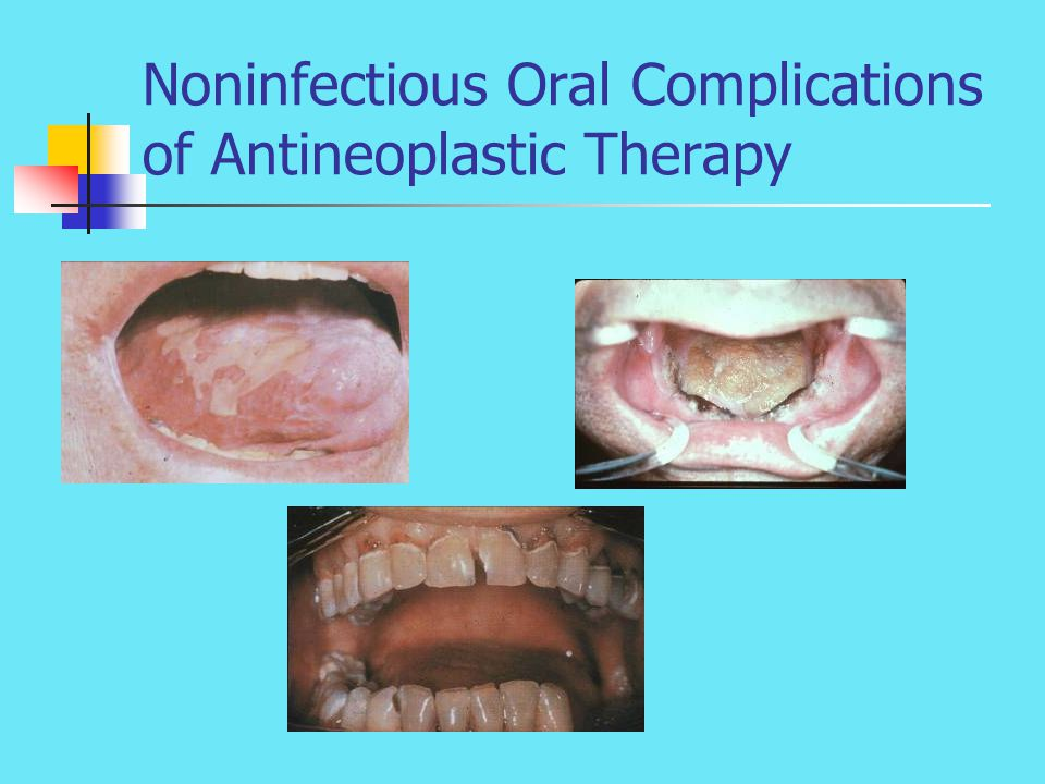 Noninfectious Oral Complications of Antineoplastic Therapy