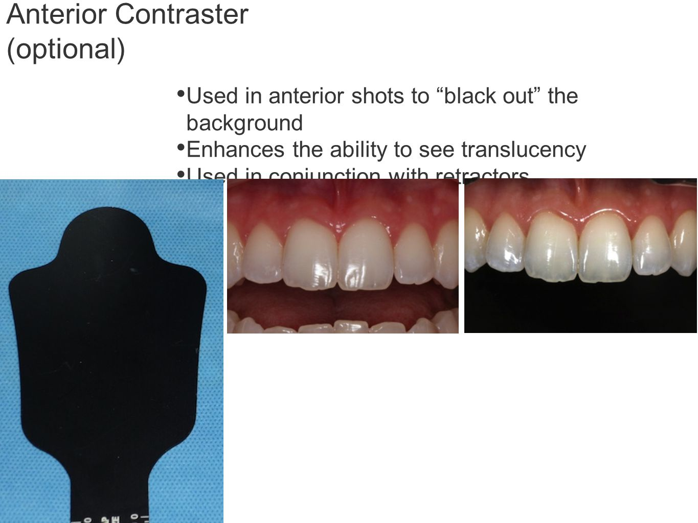 Anterior Contraster (optional) Used in anterior shots to black out the background Enhances the ability to see translucency Used in conjunction with retractors