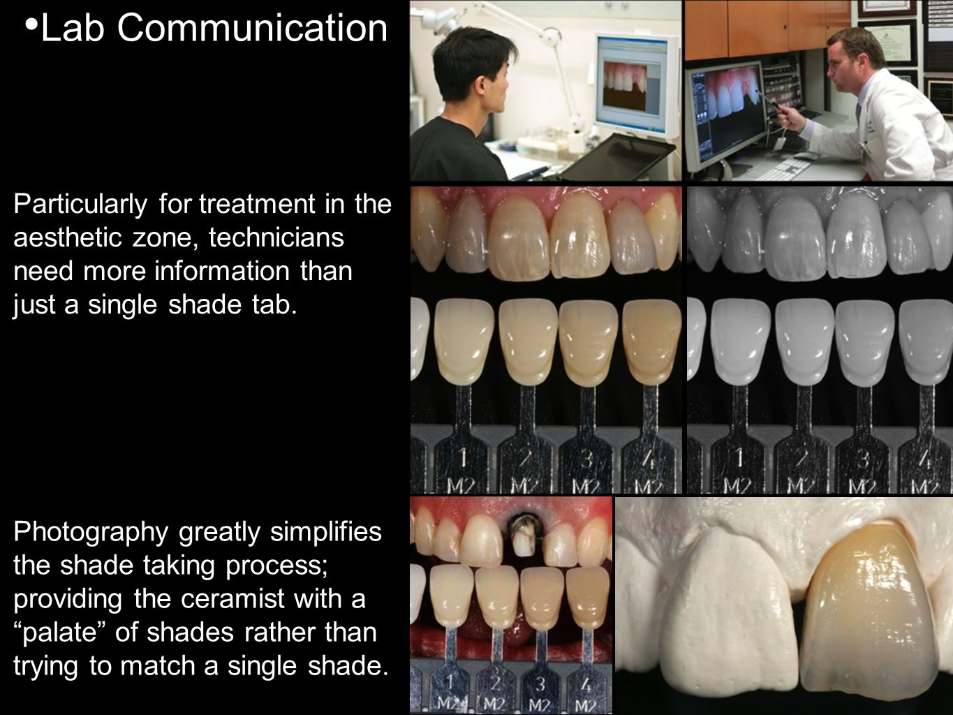 Lab Communication Particularly for treatment in the aesthetic zone, technicians need more information than just a single shade tab.