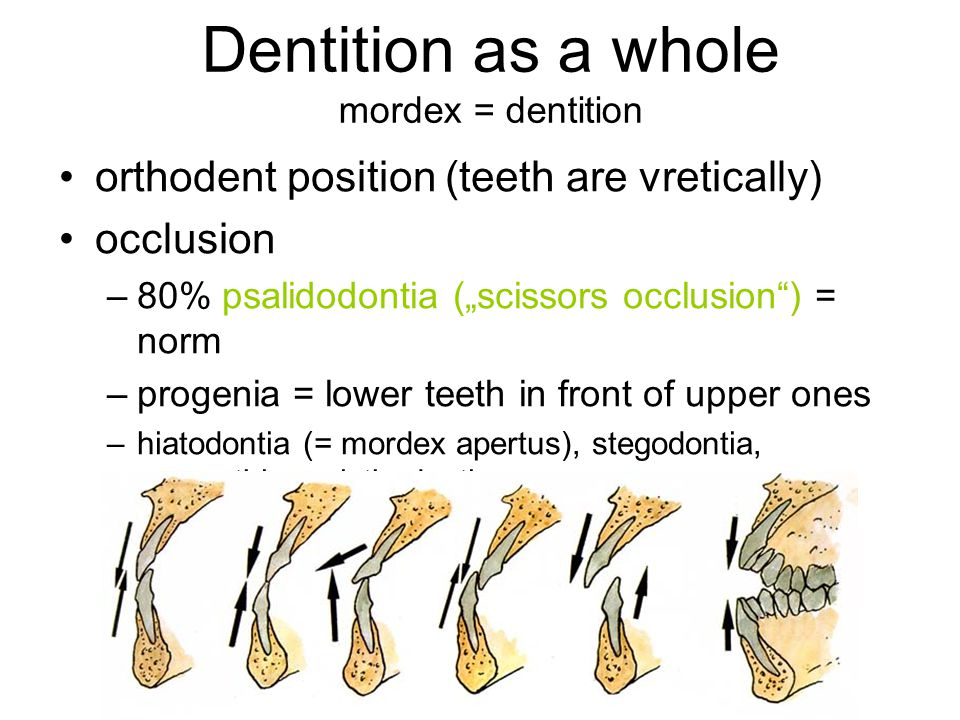 """Dentition as a whole mordex = dentition orthodent position (teeth are vretically) occlusion –80% psalidodontia (""""scissors occlusion"""") = norm –progenia"""
