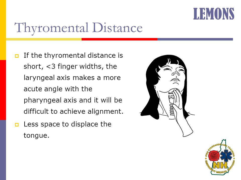 Thyromental Distance  If the thyromental distance is short, <3 finger widths, the laryngeal axis makes a more acute angle with the pharyngeal axis an