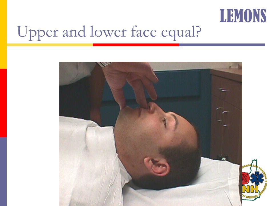 Upper and lower face equal? LEMONS