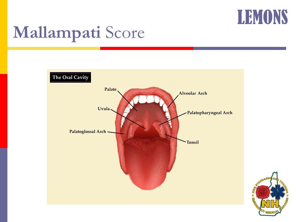 Mallampati Score LEMONS