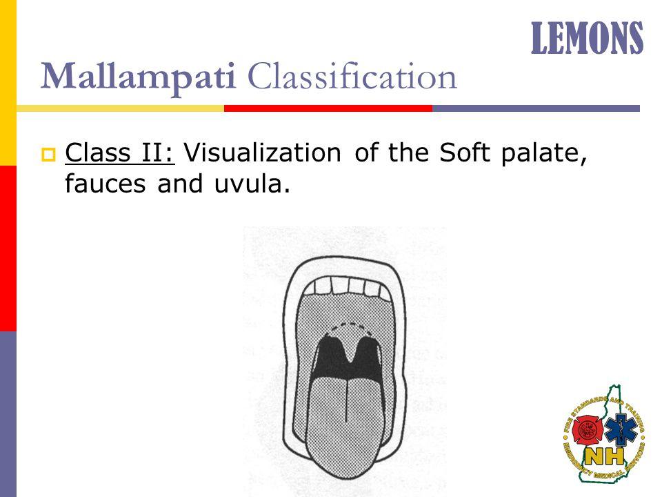 Mallampati Classification  Class II: Visualization of the Soft palate, fauces and uvula. LEMONS