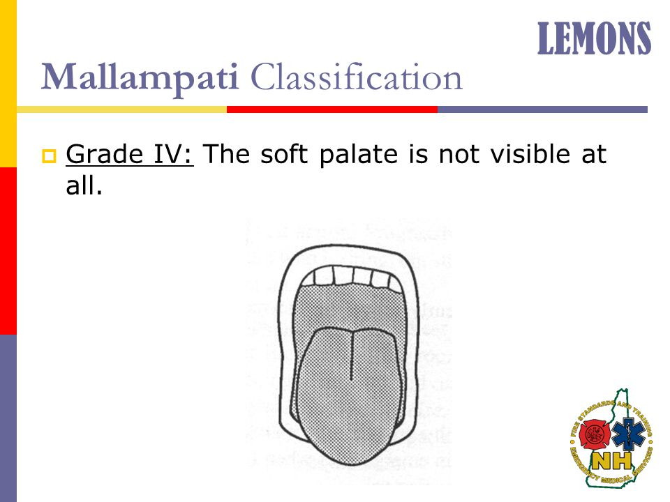 Mallampati Classification  Grade IV: The soft palate is not visible at all. LEMONS