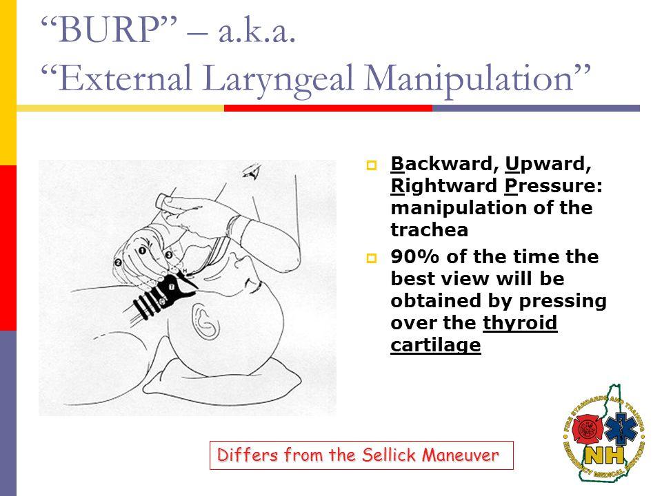 """BURP"" – a.k.a. ""External Laryngeal Manipulation""  Backward, Upward, Rightward Pressure: manipulation of the trachea  90% of the time the best view"