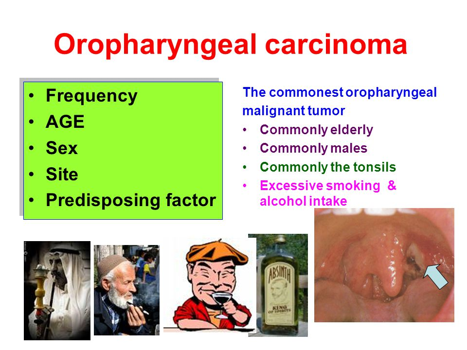 Oropharyngeal carcinoma Frequency AGE Sex Site Predisposing factor Frequency AGE Sex Site Predisposing factor The commonest oropharyngeal malignant tu