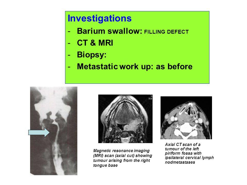 Investigations -Barium swallow: FILLING DEFECT -CT & MRI -Biopsy: -Metastatic work up: as before Magnetic resonance imaging (MRI) scan (axial cut) sho