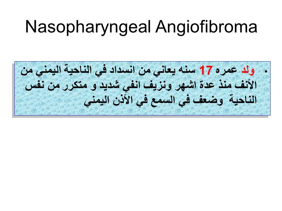 Nasopharyngeal Angiofibroma ولد عمره 17 سنه يعاني من انسداد في الناحية اليمني من الأنف منذ عدة اشهر ونزيف انفي شديد و متكرر من نفس الناحية وضعف في الس