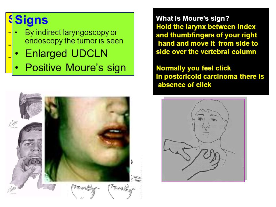Symptoms -Early dysphagia -Pain in the throat -Hoarseness & stridor Signs By indirect laryngoscopy or endoscopy the tumor is seen Enlarged UDCLN Posit