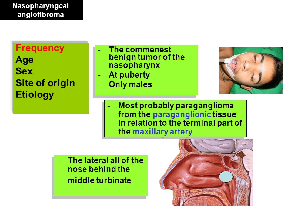 Nasopharyngeal angiofibroma Frequency Age Sex Site of origin Etiology -The commenest benign tumor of the nasopharynx -At puberty -Only males -The comm