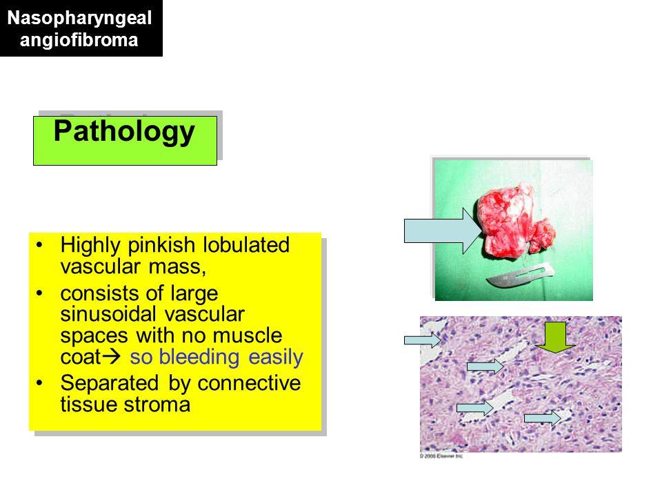 Treatment - Surgical - RND -Pharyngolaryngectomy -Reconstruction by: - Stomach pull up - Colon or ileum interposition - Myocutaneous flap