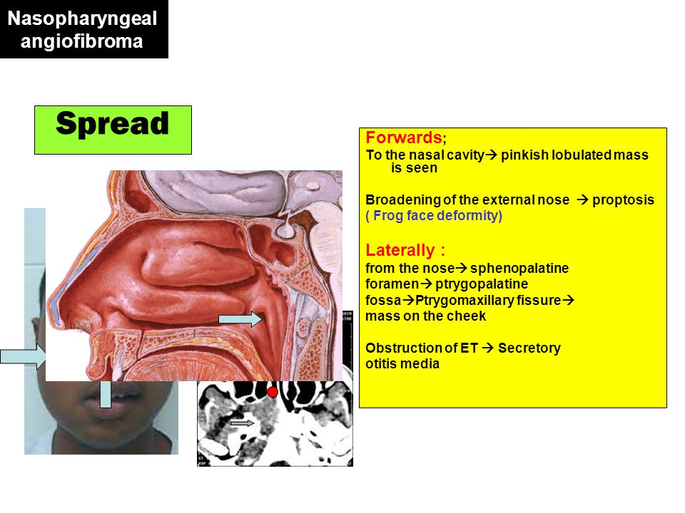 Oropharyngeal carcinoma Frequency AGE Sex Site Predisposing factor Frequency AGE Sex Site Predisposing factor The commonest oropharyngeal malignant tumor Commonly elderly Commonly males Commonly the tonsils Excessive smoking & alcohol intake