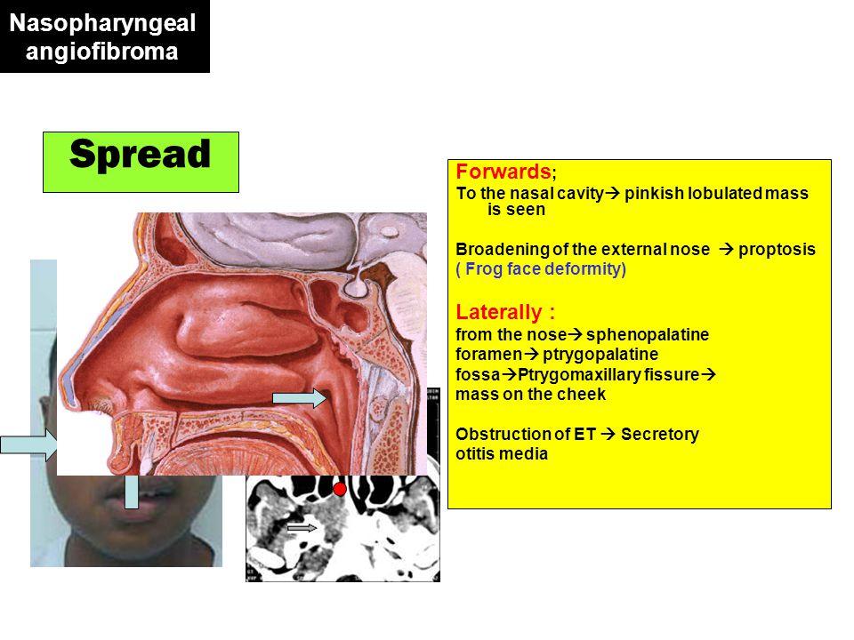 Postcricoid Carcinoma