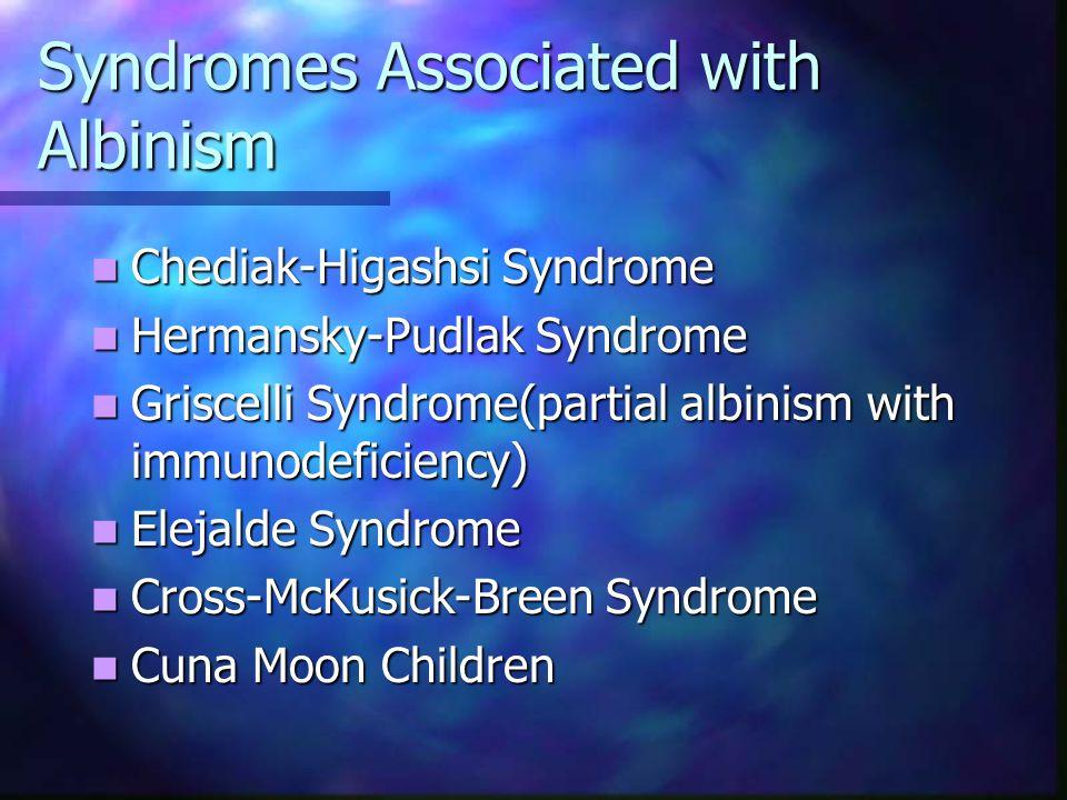Classification of Oculocutaneous Albinism