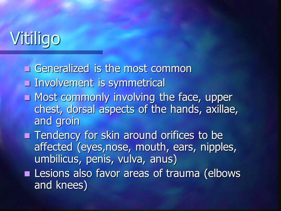 Generalized Vitiligo Involvement of perineal and inguinal skin Note the distinct borders