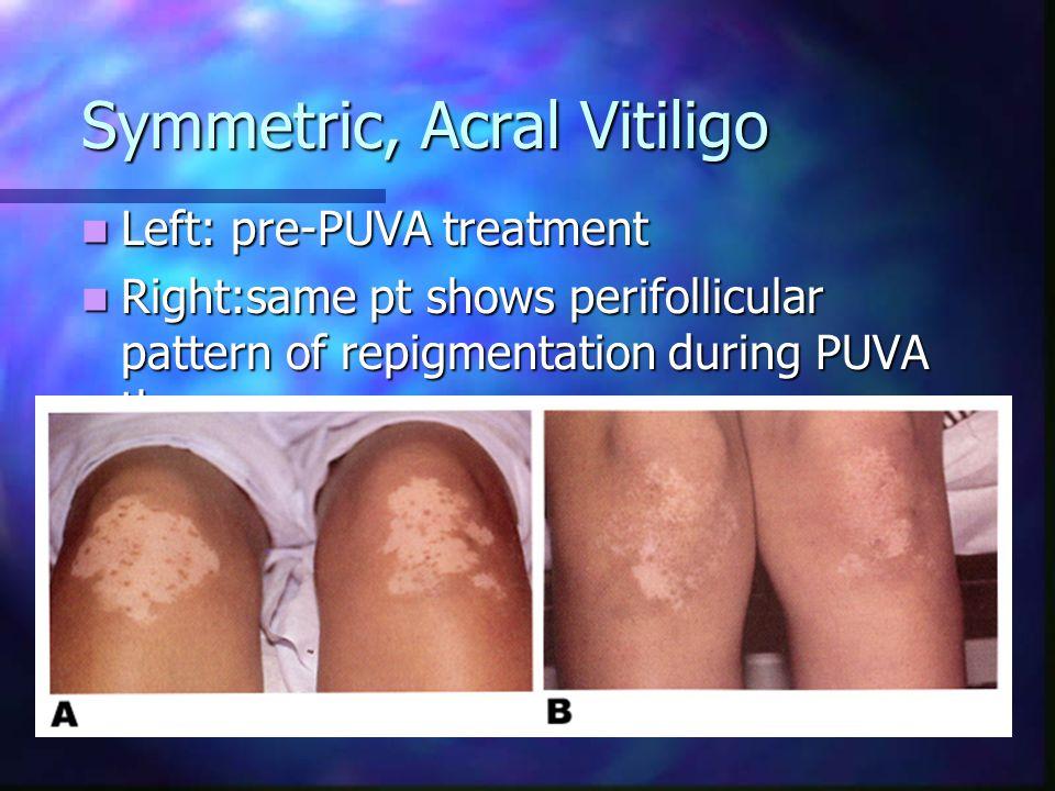 Segmental Vitiligo Rapidly progressing segmental vitiligo