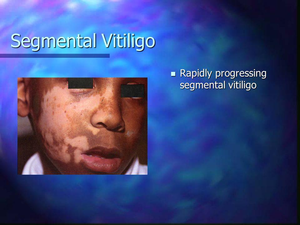 Segmental Vitiligo Segmental vitiligo of the eyebrow and eyelashes Segmental vitiligo of the eyebrow and eyelashes