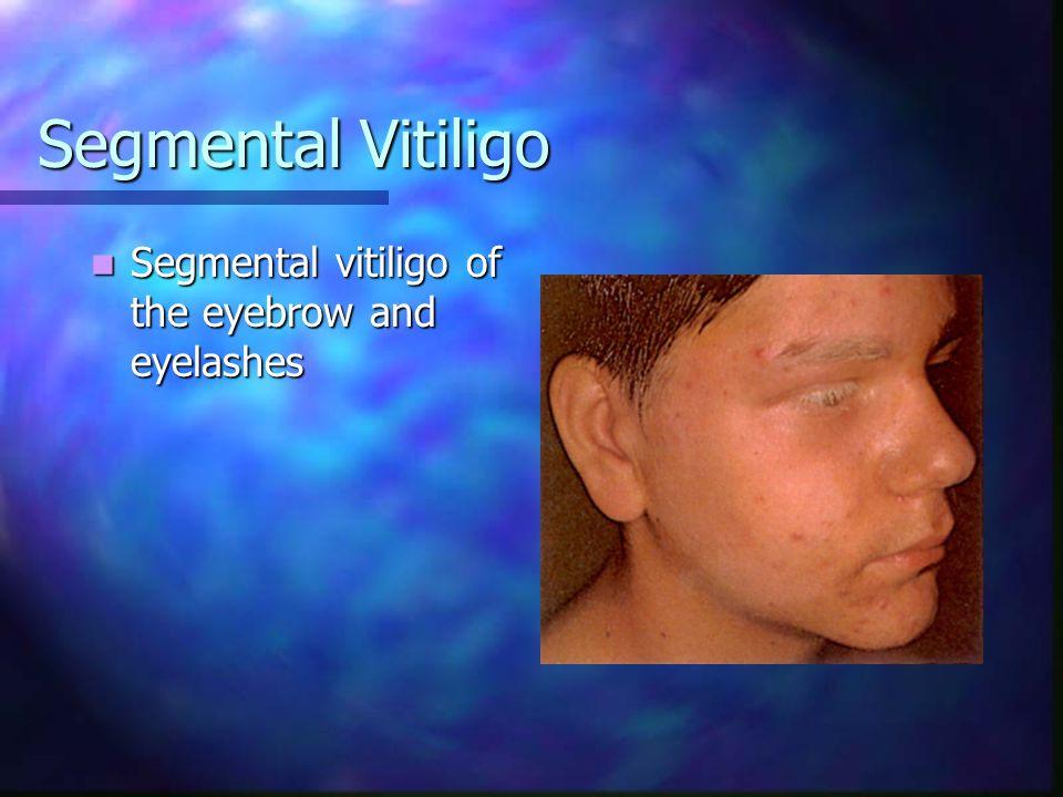 Segmental Vitiligo Segmental vitiligo on the arm, neck, and chest Note areas of spontaneous follicular repigmentation Left upper back with partial spontaneous repigmentation