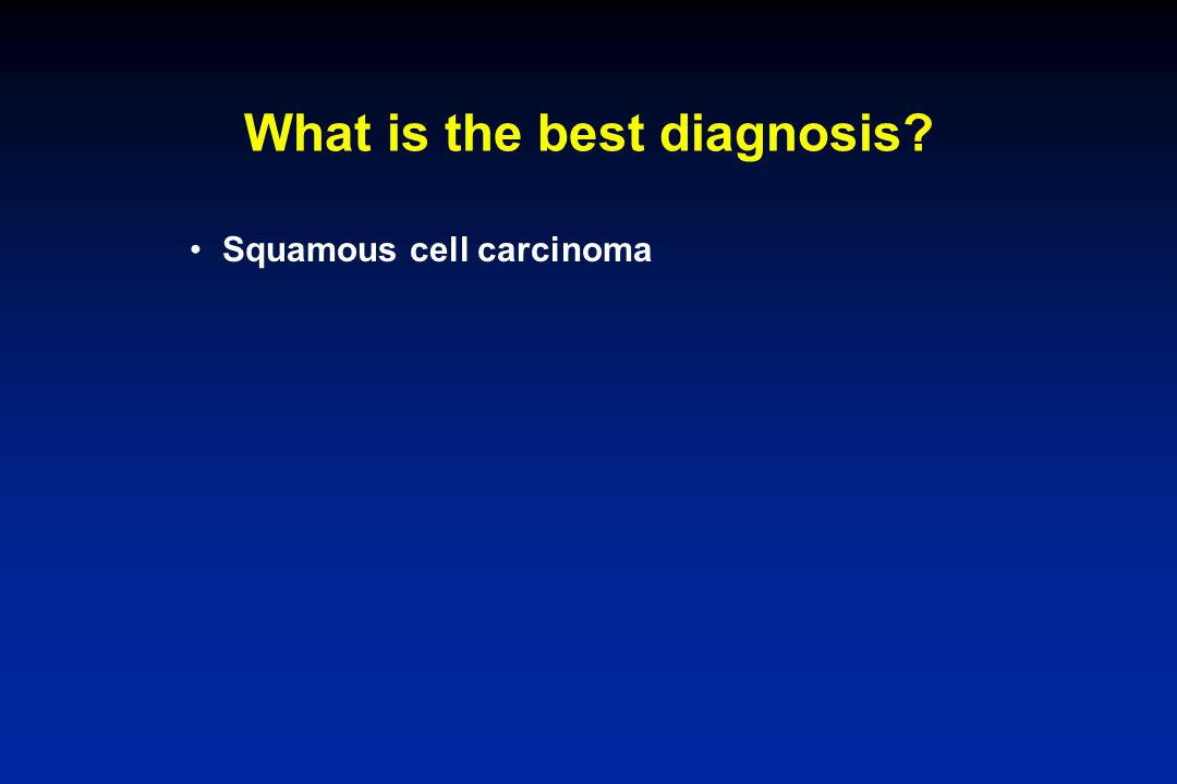 What is the best diagnosis? Squamous cell carcinoma
