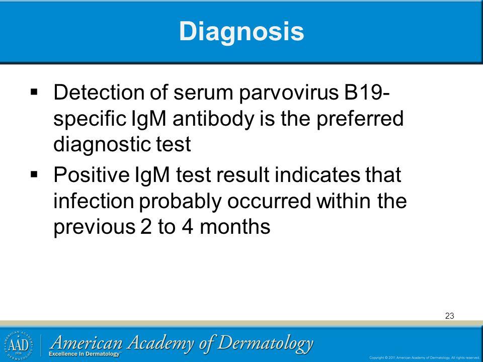 Diagnosis  Detection of serum parvovirus B19- specific IgM antibody is the preferred diagnostic test  Positive IgM test result indicates that infect