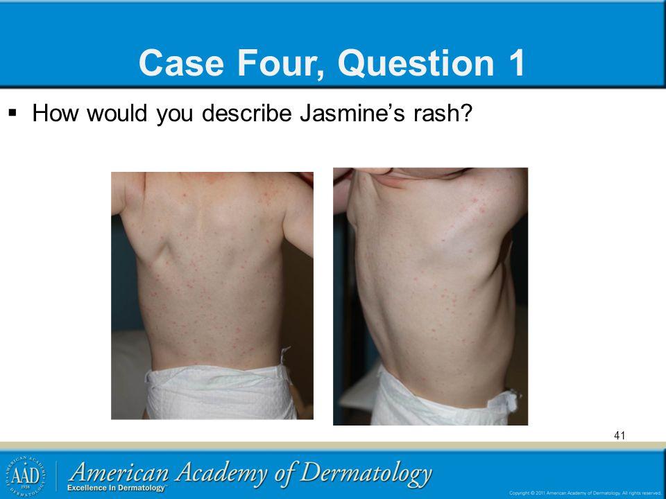 Case Four, Question 1  How would you describe Jasmine's rash? 41