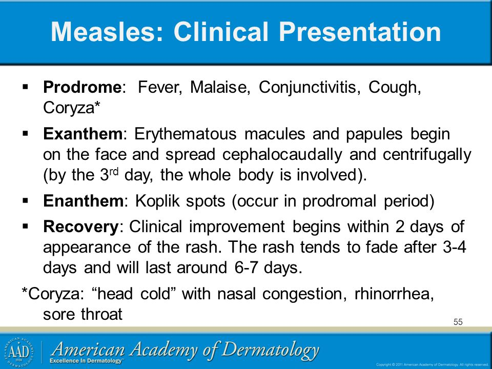 Measles: Clinical Presentation  Prodrome: Fever, Malaise, Conjunctivitis, Cough, Coryza*  Exanthem: Erythematous macules and papules begin on the fa
