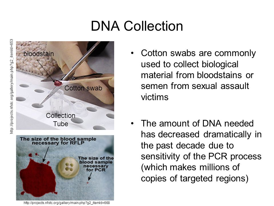DNA Collection Cotton swabs are commonly used to collect biological material from bloodstains or semen from sexual assault victims The amount of DNA needed has decreased dramatically in the past decade due to sensitivity of the PCR process (which makes millions of copies of targeted regions) http://projects.nfstc.org/gallery/main.php g2_itemId=653 http://projects.nfstc.org/gallery/main.php g2_itemId=668 bloodstain Cotton swab Collection Tube