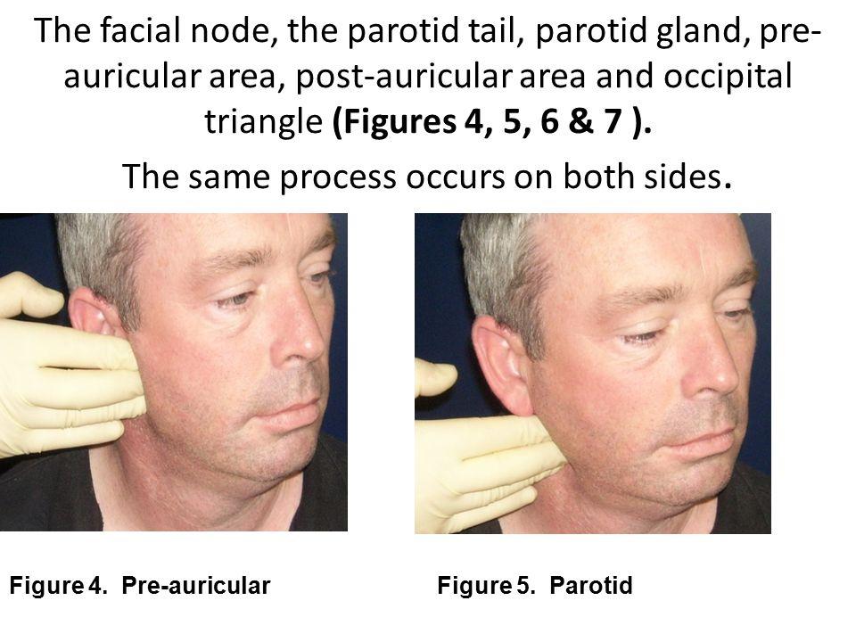 The facial node, the parotid tail, parotid gland, pre- auricular area, post-auricular area and occipital triangle (Figures 4, 5, 6 & 7 ). The same pro