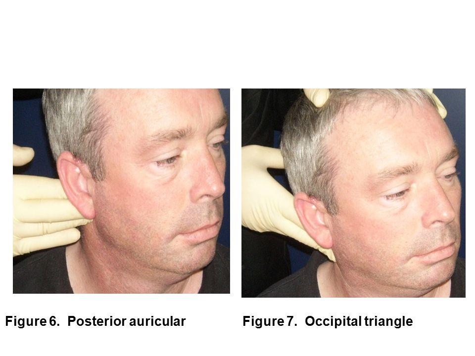 Figure 6. Posterior auricularFigure 7. Occipital triangle