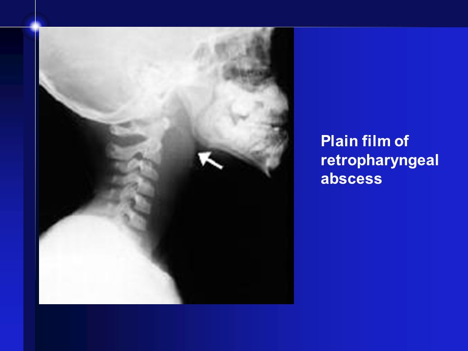 Plain film of retropharyngeal abscess