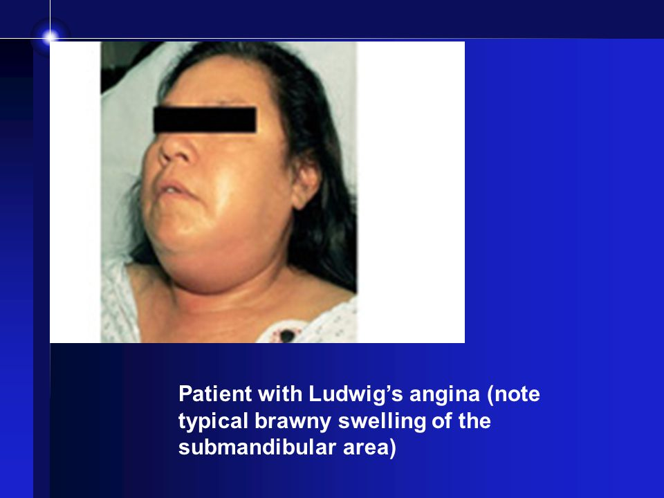 Patient with Ludwig's angina (note typical brawny swelling of the submandibular area)