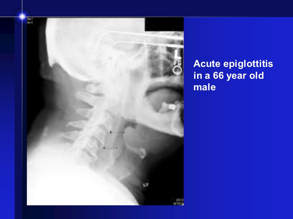 Acute epiglottitis in a 66 year old male