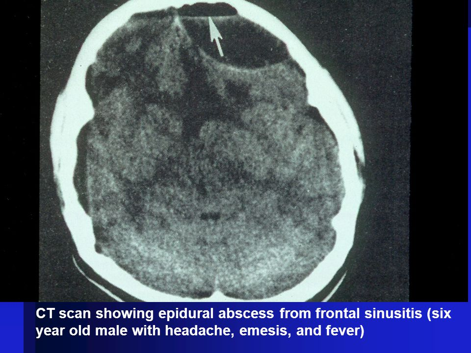 CT scan showing epidural abscess from frontal sinusitis (six year old male with headache, emesis, and fever)