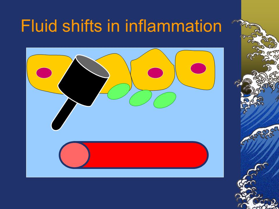 Fluid shifts in inflammation