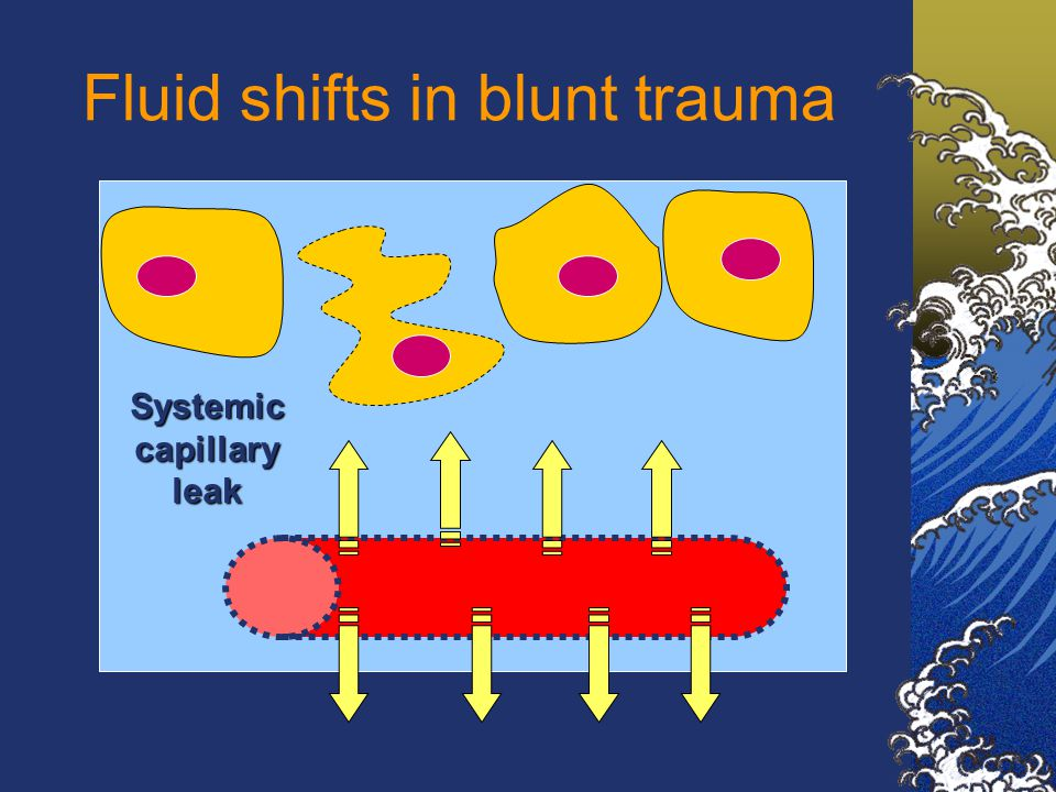 Fluid shifts in blunt trauma Systemic capillary leak